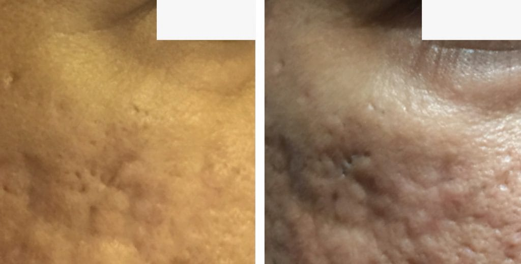 Skin resurfacing London before and after 1
