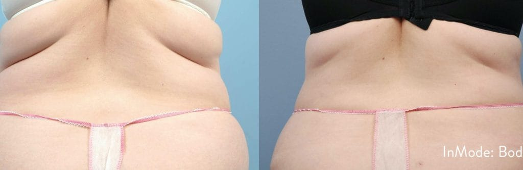 Bodytite Before and after picture 1