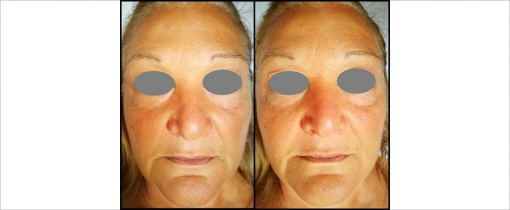 Rae Clinic peel, Before and After picture 3