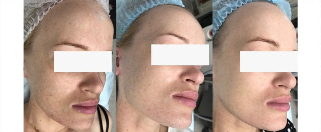Rae clinic peel, Before and After picture 2