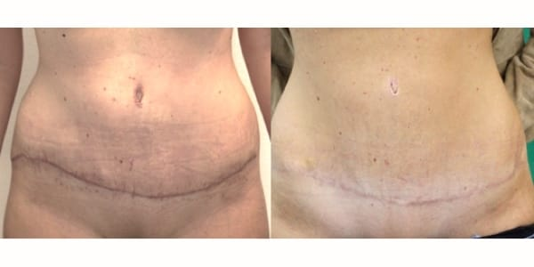Surgical scar treatment london