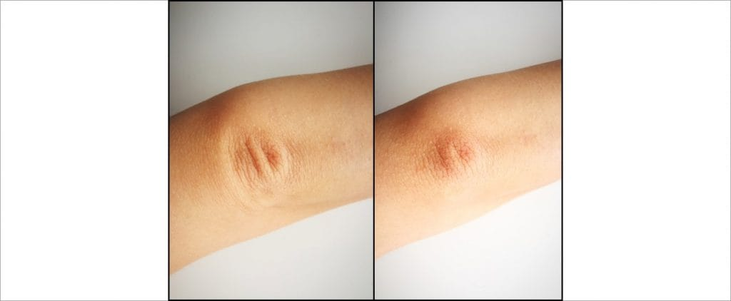 Regenerative peel, Before and After picture 5