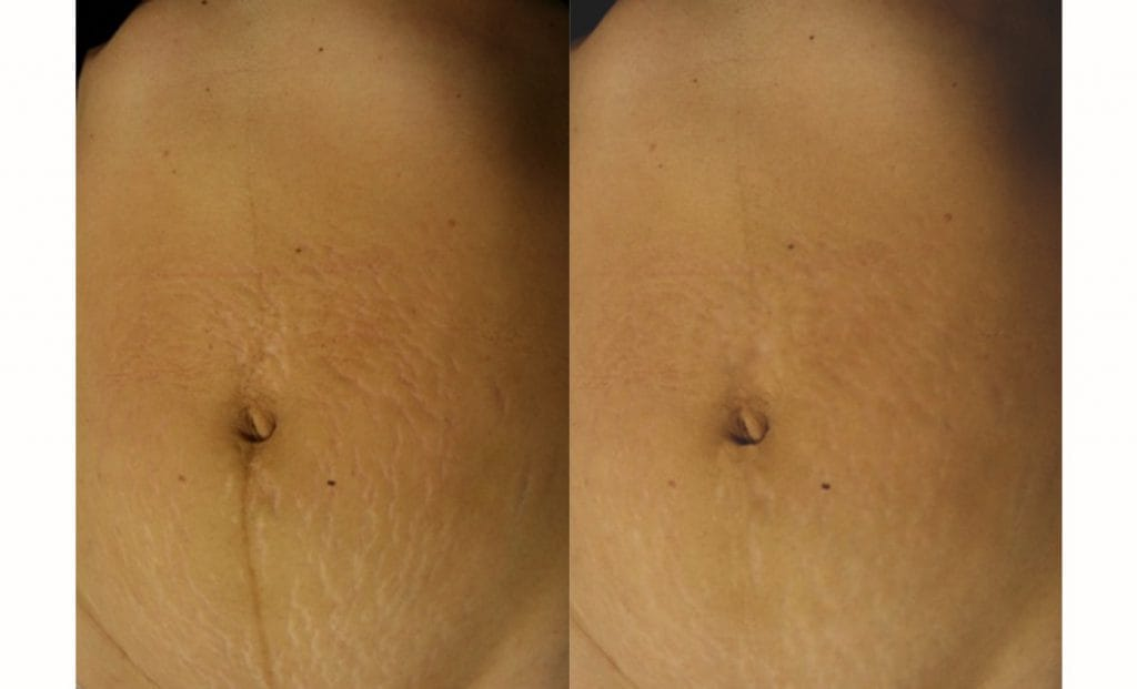 Laser strech mark removal before and after 2