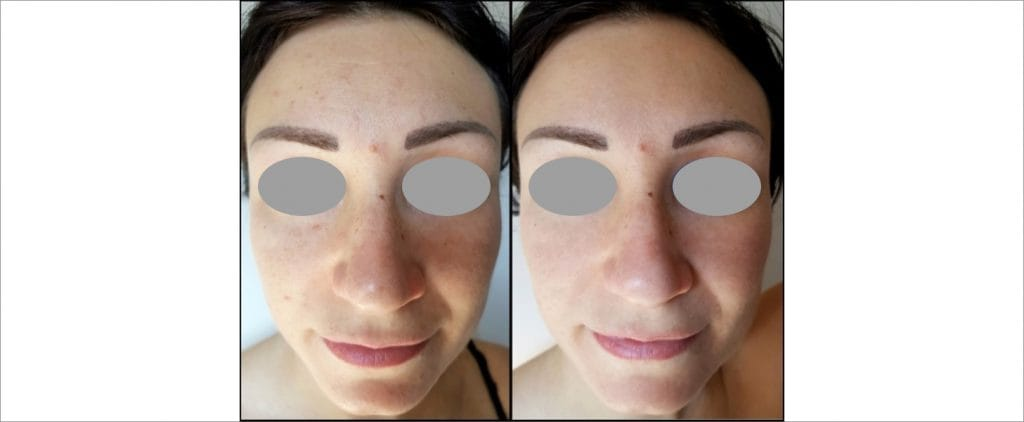 Regenerative peel, Before and After picture 1