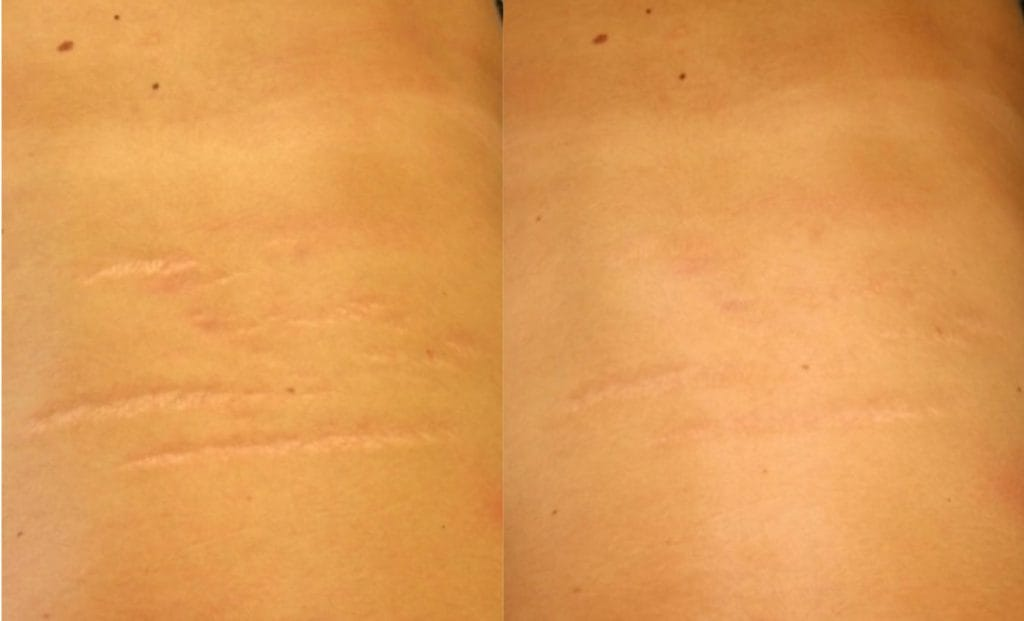 Laser strech mark removal before and after 1