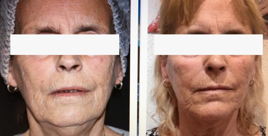 Skin resurfacing London before and after 2