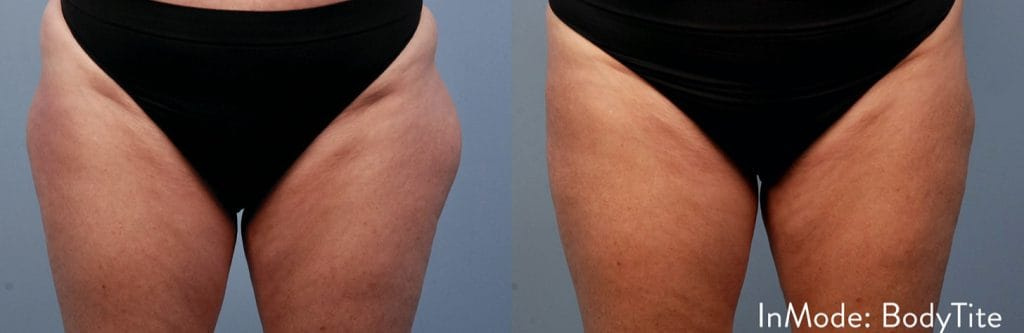 Bodytite Before and after picture 2