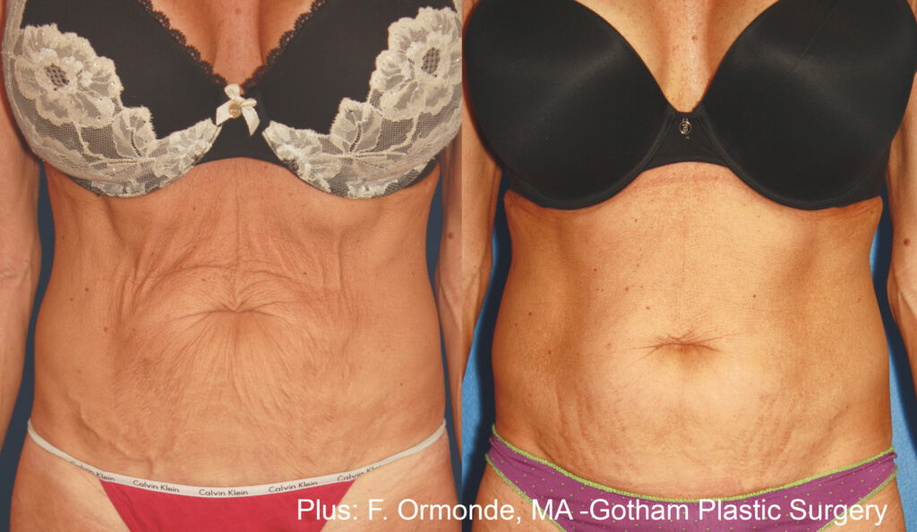 Skin tightening for stomach before and after picture 6