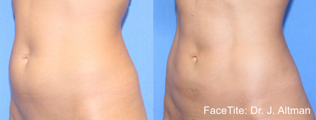 stomach before and after picture 1