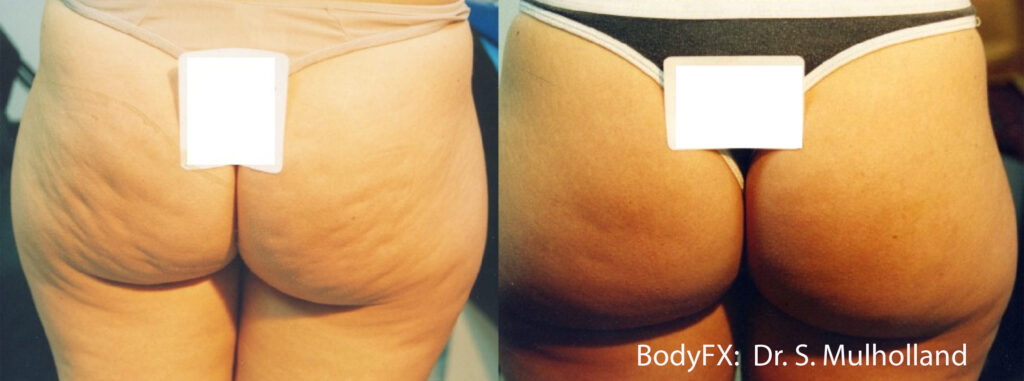 Cellulite treatment London before and after 2