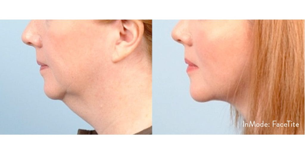 Before and Atter , Facetite 3