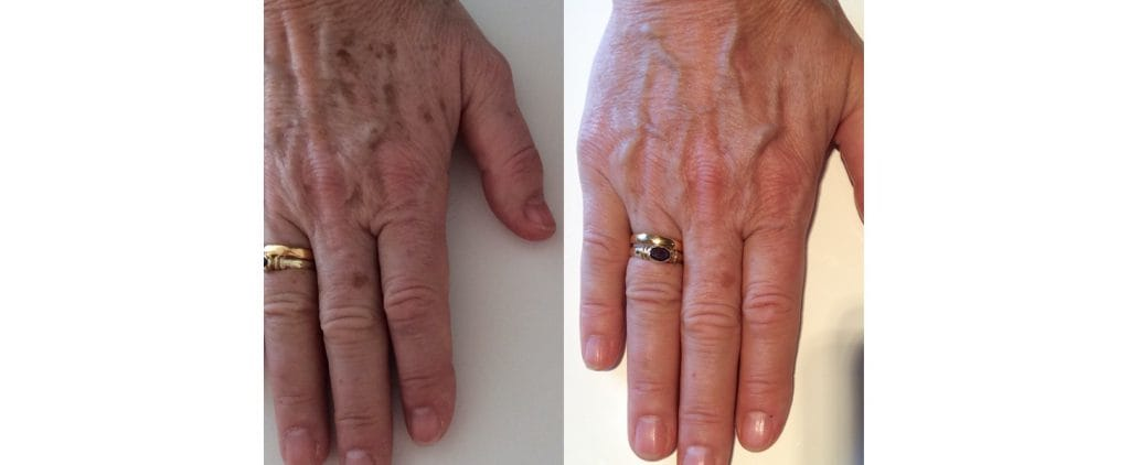 Lumecca hands before and after