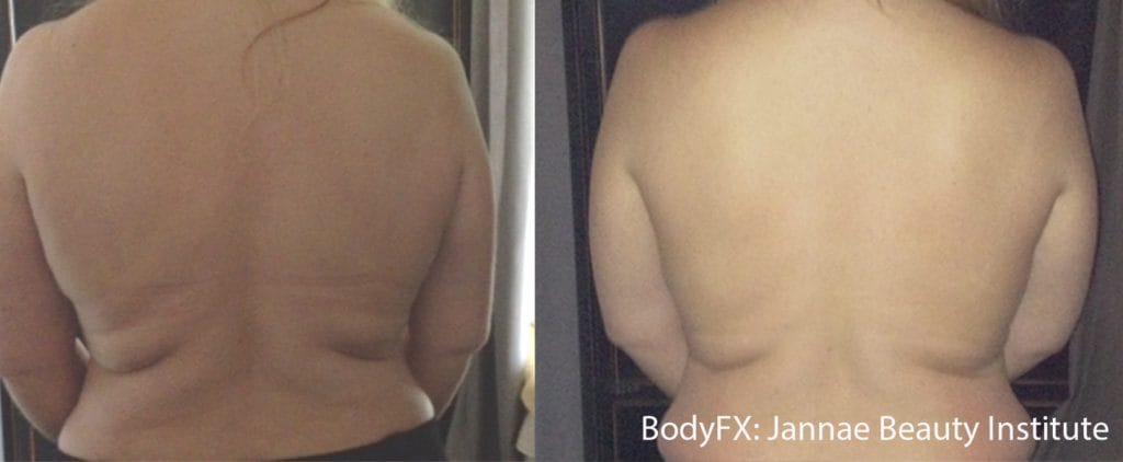 Body Sculpting London before and after picture 2