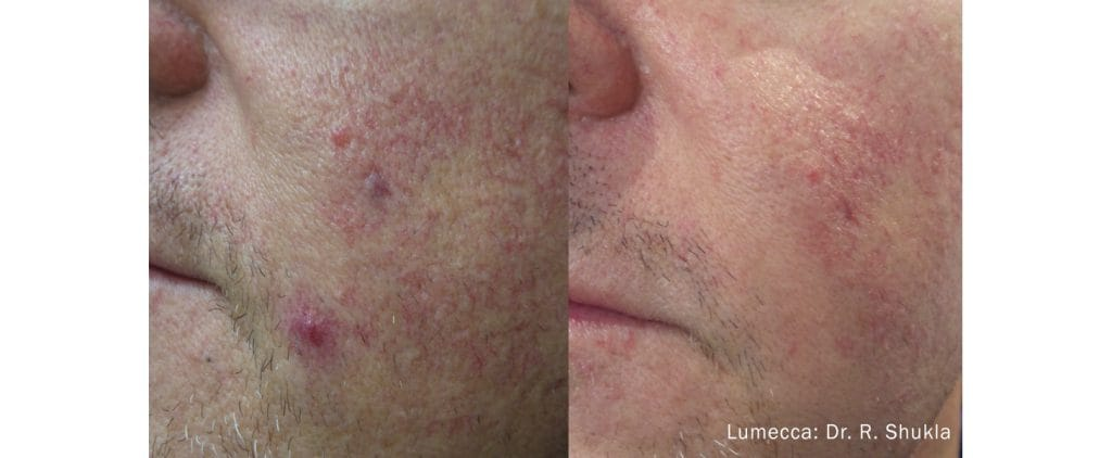 Lumecca vasuclar before and after