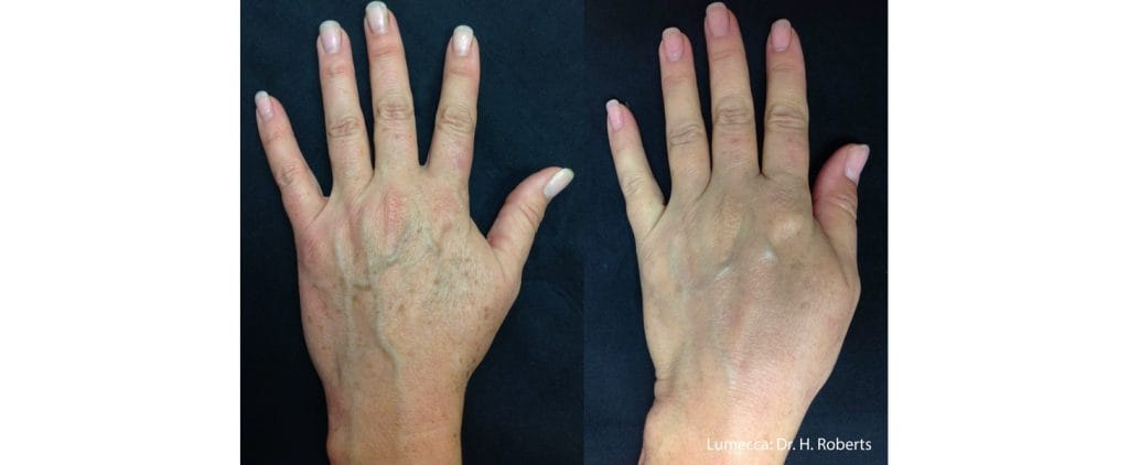 pigmentation hands before and after