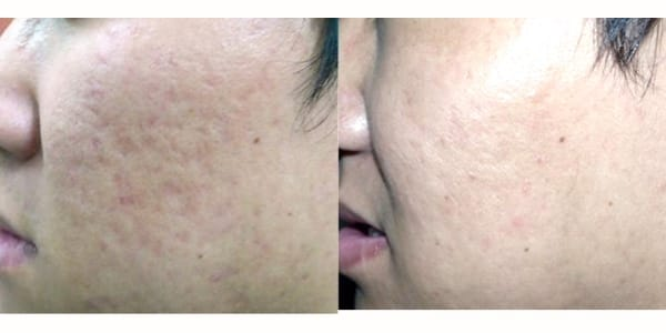 scar treatment Before and after 1