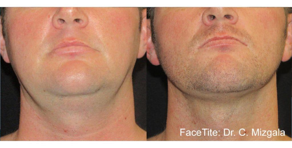 Before and Atter , Facetite 2