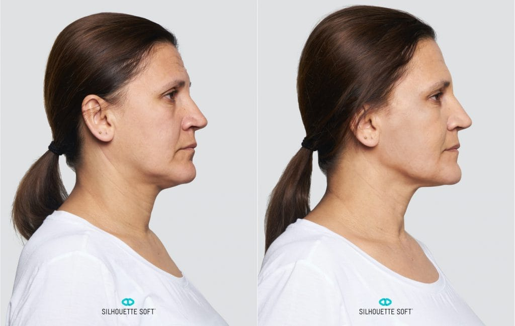 Silhouette Soft before and after 5