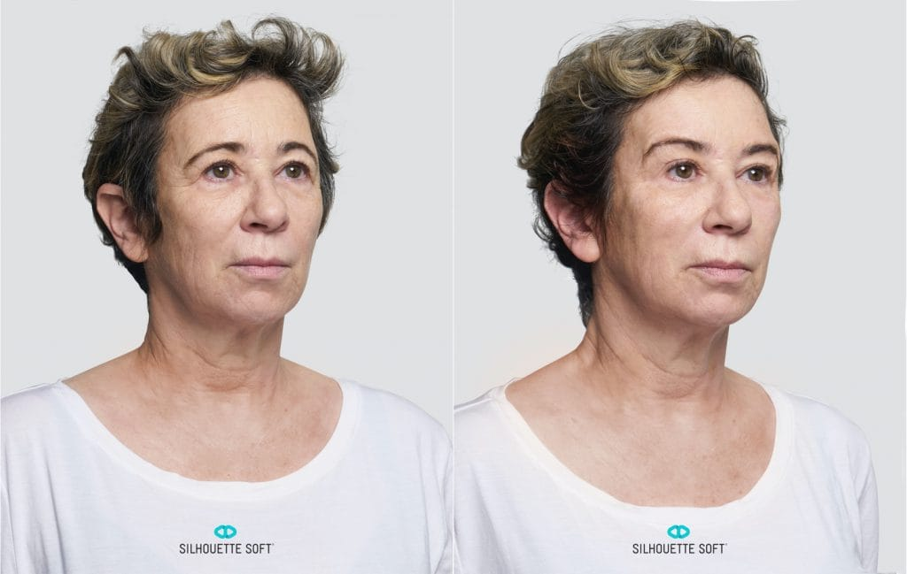 face threads before and after 4