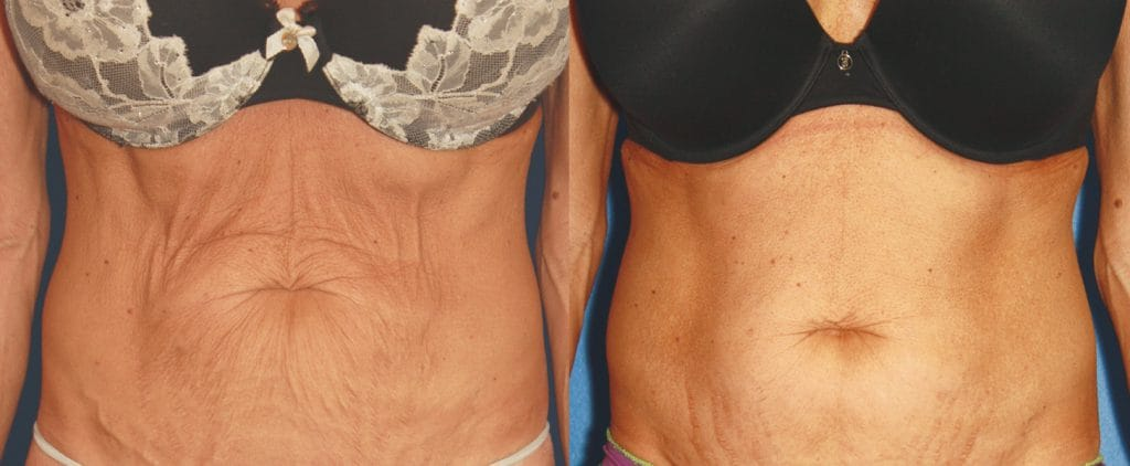 Body Sculpting London before and after picture 1