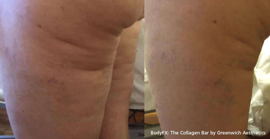 Cellulite before and after 3
