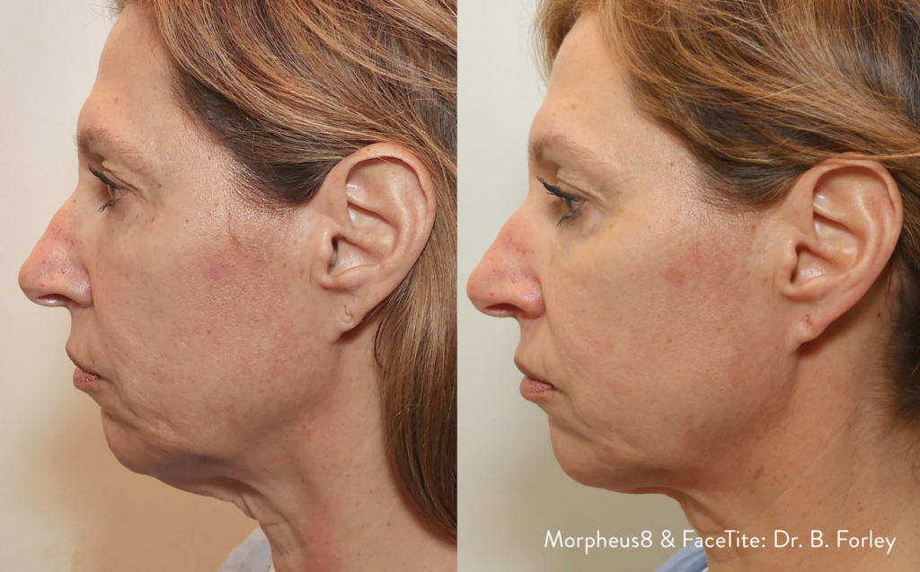 Jawline sculpting, Before and After picture 1