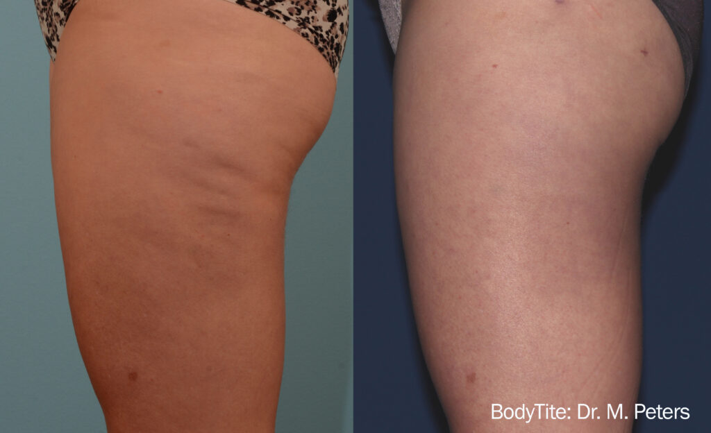 Cellulite before and after 4