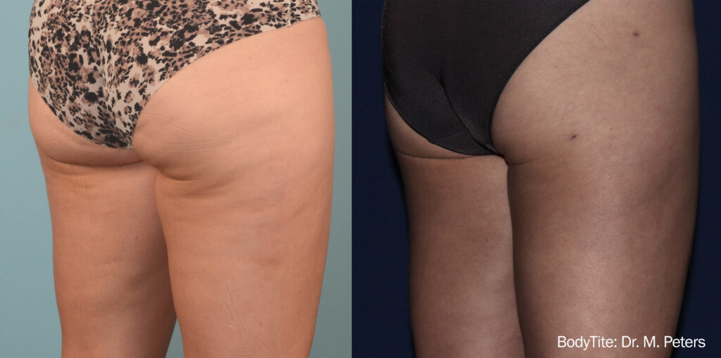 Cellulite before and after 5
