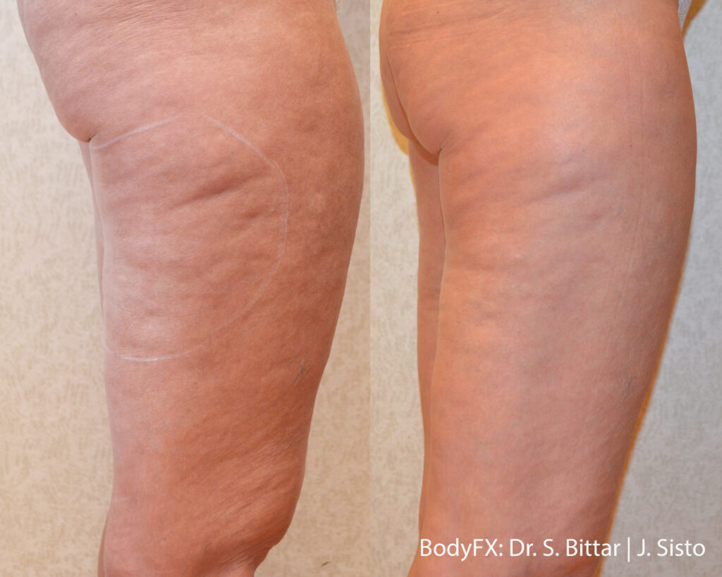 Cellulite treatment London before and after 1